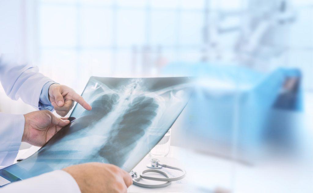 胸肺 X 光检查是常见的肺癌筛检方法之一。