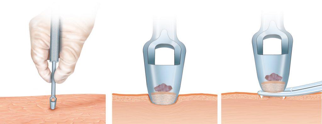 鑽取式活組織檢驗一般用於抽取少部分的皮膚組織。